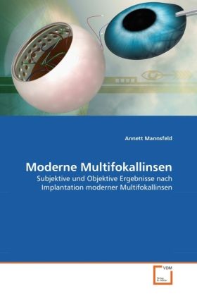 Moderne Multifokallinsen - Mannsfeld, Annett