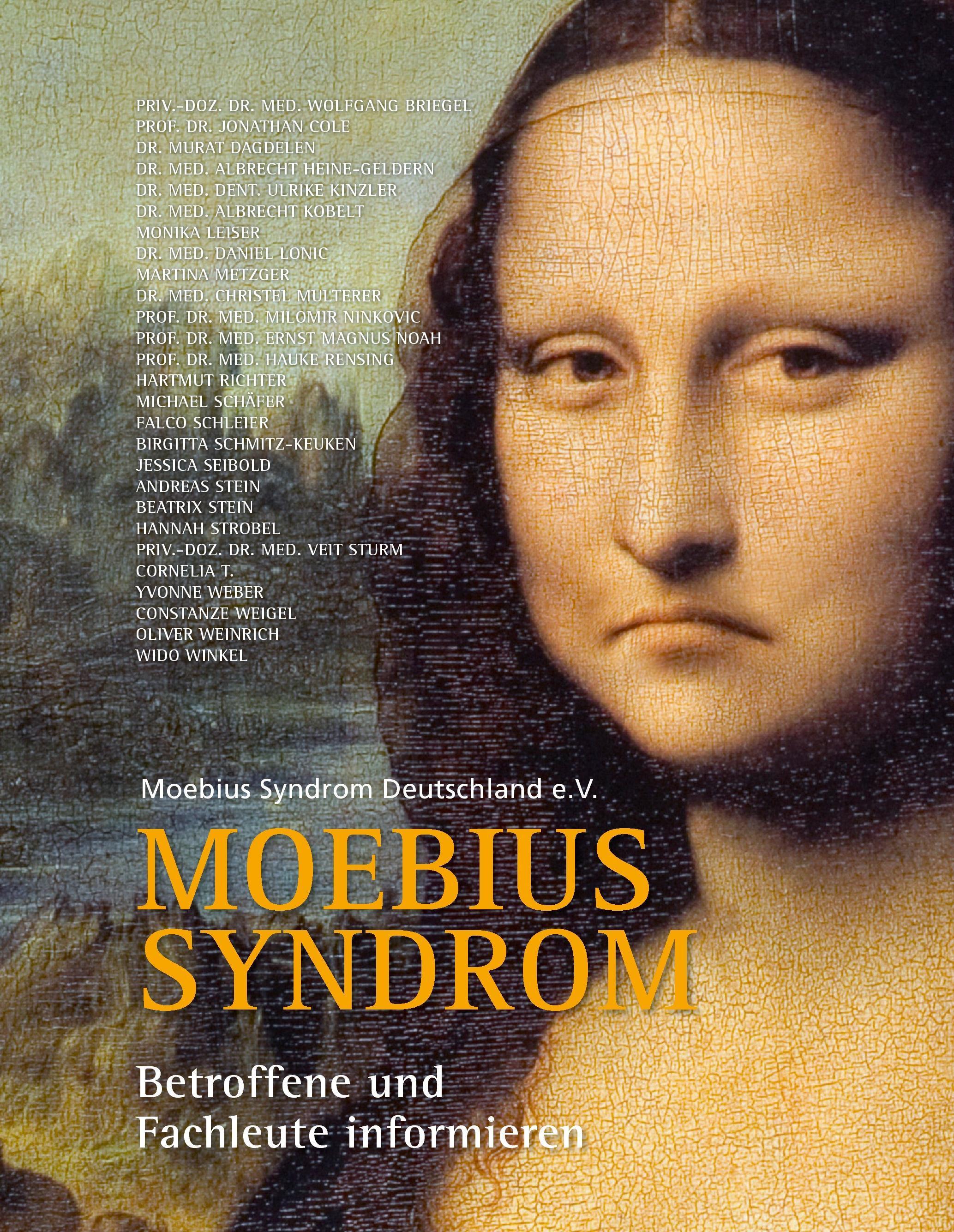 Moebius Syndrom