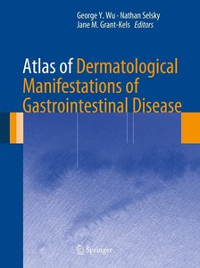 Atlas of Dermatological Manifestations of Gastrointestinal Disea