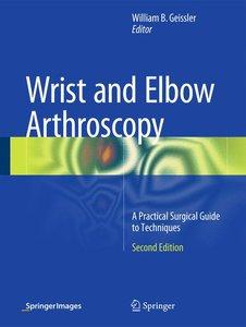 Wrist and Elbow Arthroscopy