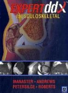 Expert Differential Diagnoses: Musculoskeletal