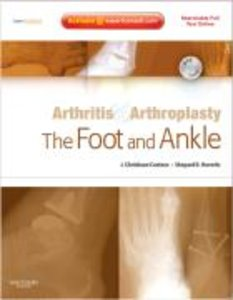 The Foot and Ankle - Arthritis & Arthroplasty