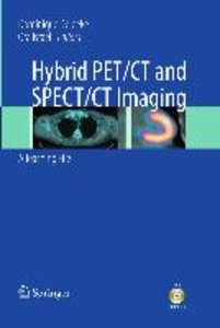 Hybrid PET/CT and SPECT/CT Imaging