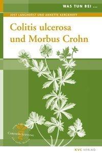 Was tun bei Colitis ulcerosa und Morbus Crohn