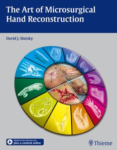 The Art of Microsurgical Hand Reconstruction