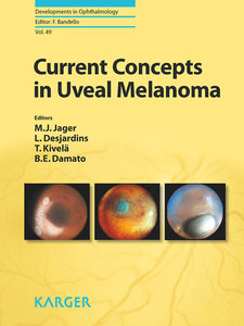 Current Concepts in Uveal Melanoma