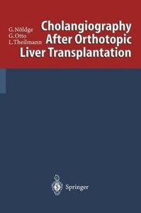 Cholangiography After Orthotopic Liver Transplantation