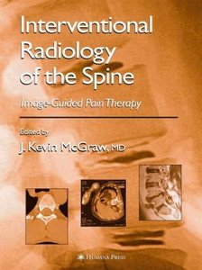 Interventional Radiology of the Spine