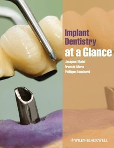 Implant Dentistry at a Glance