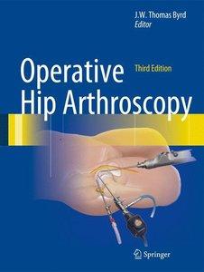Operative Hip Arthroscopy