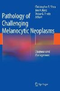 Pathology of Challenging Melanocytic Neoplasms