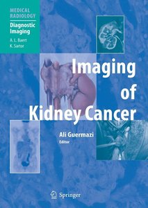 Imaging of Kidney Cancer
