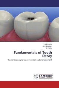 Fundamentals of Tooth Decay