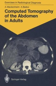 Computed Tomography of the Abdomen in Adults