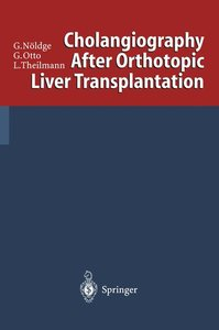 Cholangiography After Orthotopic Liver Transplantation