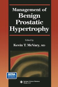 Management of Benign Prostatic Hypertrophy