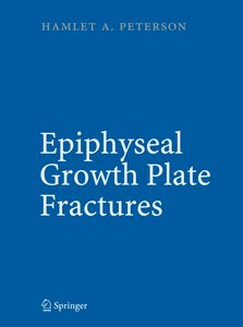Epiphyseal Growth Plate Fractures