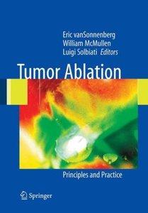 Tumor Ablation