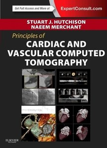 Principles of Cardiovascular Computed Tomography
