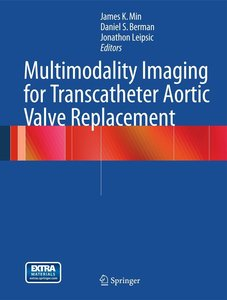 Multimodality Imaging for Transcatheter Aortic Valve Replacement