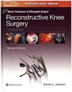 Master Techniques in Orthopaedic Surgery: Reconstructive Knee Su