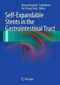 Self-Expandable Stents in the Gastrointestinal Tract