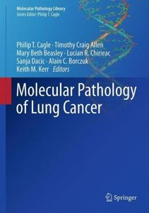 Molecular Pathology of Lung Cancer