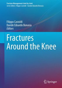 Fractures around the Knee