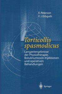 Torticollis spasmodicus