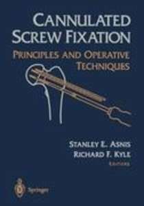 Cannulated Screw Fixation