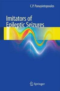 Imitators of epileptic seizures