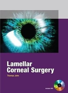 Lamellar Corneal Surgery