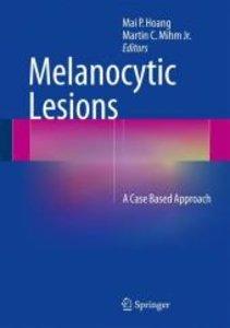 Melanocytic Lesions