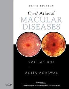 Gass' Atlas of Macular Diseases: 2-Volume Set - Expert Consult: