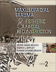 Maxillofacial Trauma and Esthetic Facial Reconstruction
