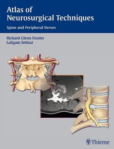 Atlas of Neurosurgical Techniques