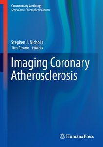 Imaging Coronary Atherosclerosis