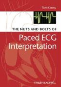 The Nuts and Bolts of Interpreting Paced ECGs and EGMs