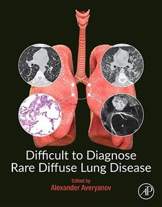 Difficult to Diagnose Rare Diffuse Lung Disease