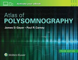 Atlas of Polysomnography