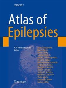 The Atlas of Epilepsies