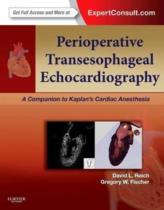 Perioperative Transesophageal Echocardiography