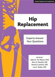 Hip Replacement: Experts Answer Your Questions