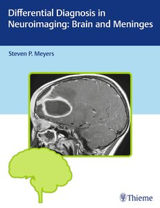 Differential Diagnosis in Neuroimaging