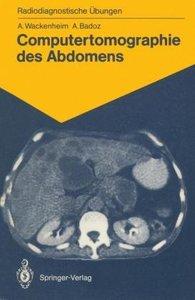 Computertomographie des Abdomens