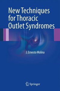 New Techniques for Thoracic Outlet Syndromes
