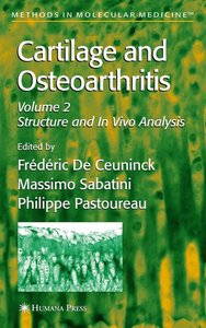 Cartilage and Osteoarthritis