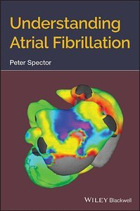 Understanding Atrial Fibrillation: A Conceptually Guided Approac