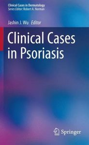 Clinical Cases in Psoriasis