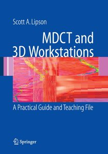 MDCT and 3D Workstations